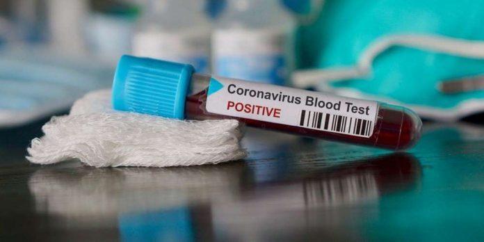 Coronavirus en Algérie : Les contaminations en baisse